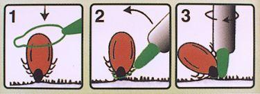 Veilig teken verwijderen lasso